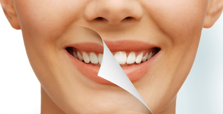 chestermere-dental-Cosmetic-Dentistry